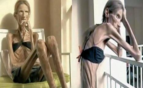 the increasing cases of anorexia nervosa Describes case studies of two women battling anorexia nervosa  notes that  anorexia has increased by 36 percent every five years since the 1950s—at least  8.